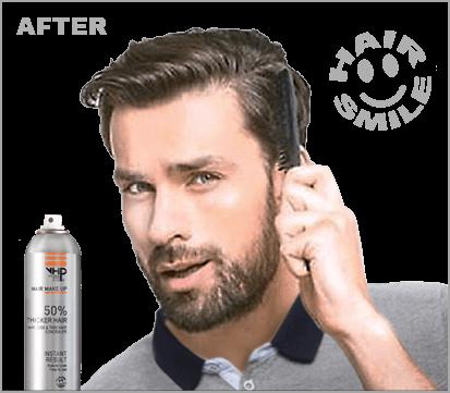 Haarverzorging Dun Haar. Maximale volume aan dun haar