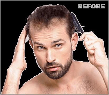Haarverzorging Dun Haar