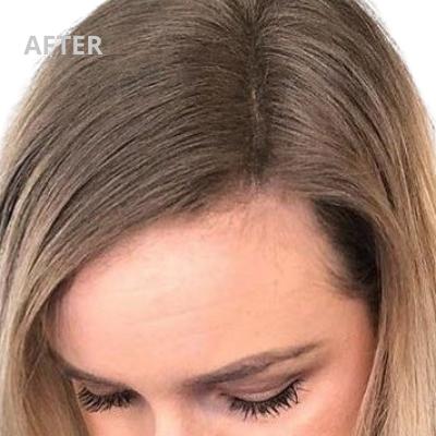 Zie hier het resultaat na gebruik van VHP Hair TopUp dat zorgt voor dikker haar bij vrouwen.
